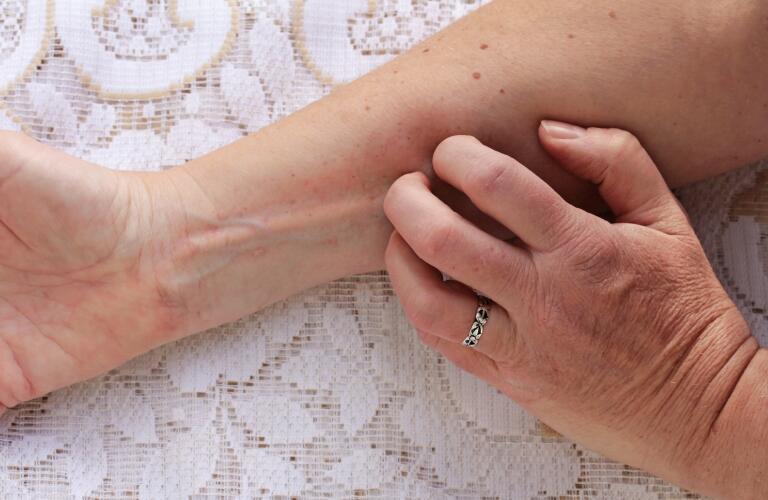 itchy-skin-rash