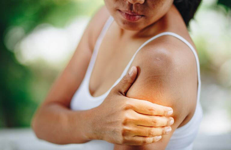 woman with rash on arm or shoulder