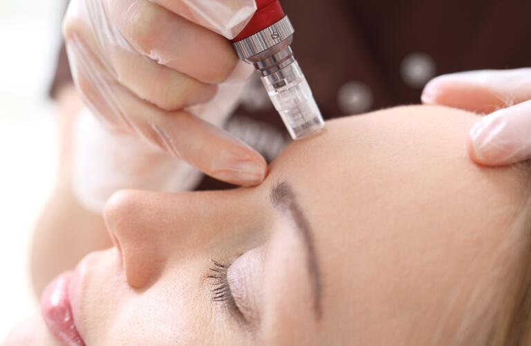 woman receiving microneedling with a mesotherapy needle at an aesthetic spa or dermatologist office