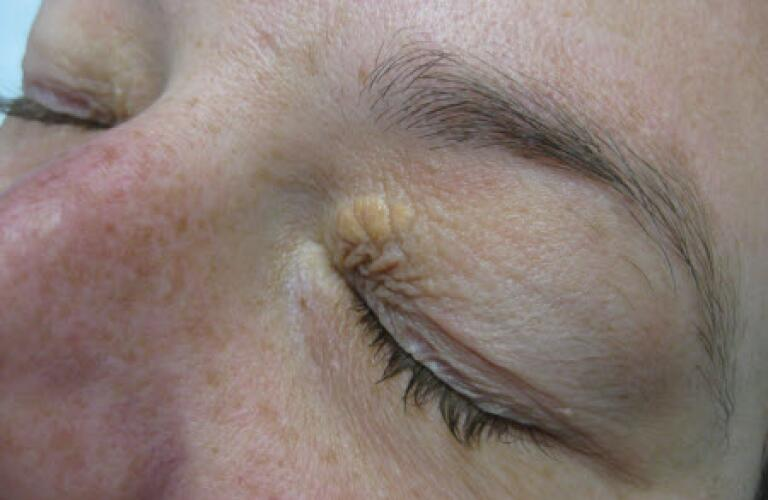 Photo of a xanthoma on the eye
