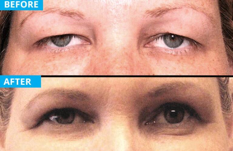 eyelid surgery patient 3